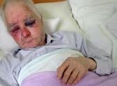 Сторонники «ПЦУ» жестоко избили 63-летнего прихожанина Украинской Православной Церкви в селе Задубровке на Буковине